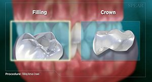 filling_crown