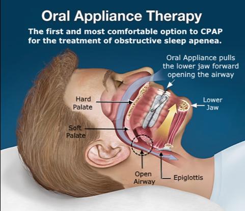Hawaii Dental Sleep Medicine Better Health Through Restful ...